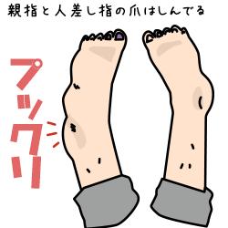 腫れ上がった足のイラスト