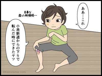 内出血なら登山の思い出の一つと思う漫画2
